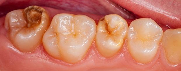 Kreidezähne